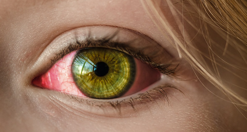 pink eye student pediatric eyecare local eye doctor near you