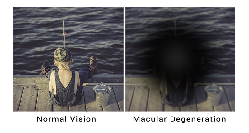 macular degeneration treatable adult eyecare local eye doctor near you small